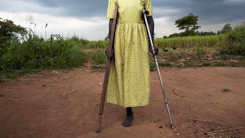 Frau mit einem amputierten Bein und Krücken in Uganda